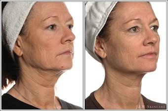 Non-Surgical Facelift treatment by Spring Mist Spa Milton is one of the most effective non-surgical facelift method to take years off the face.