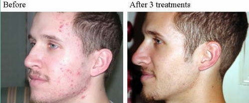 Spring Mist Spa Milton - Acne Treatment Before and After