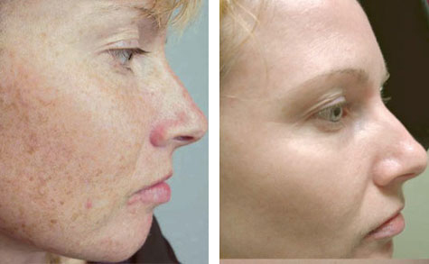 Skin Peel Treatments at Spring Mist Spa (Facial Skin Peels)