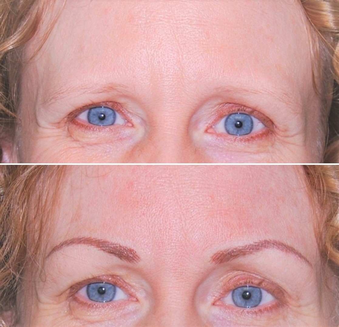 Eyebrows Microblading in Milton at Spring Mist Spa Milton