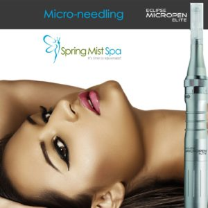 Milton Spa Specials, Offers, Deals And Discounts - Microneedling