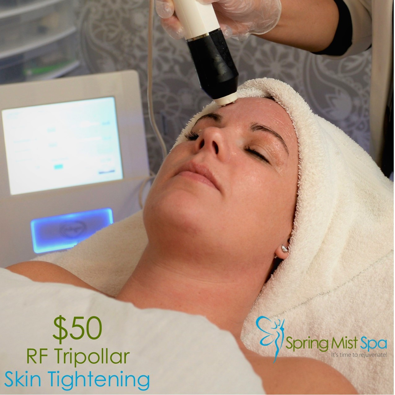 Spring Mist Milton Spa Specials - RF Tripllar Skin Tightening treatment for Eyes - August 2019 Special