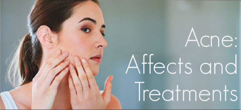 Spring Mist Spa Milton - Acne: Affects and Treatments