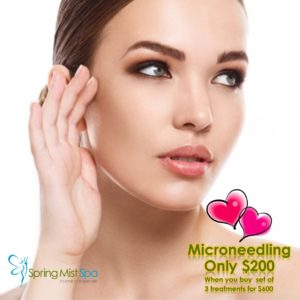 Spring Mist Milton Spa Valentine's Special: Microneedling (Collagen Induction Therapy)